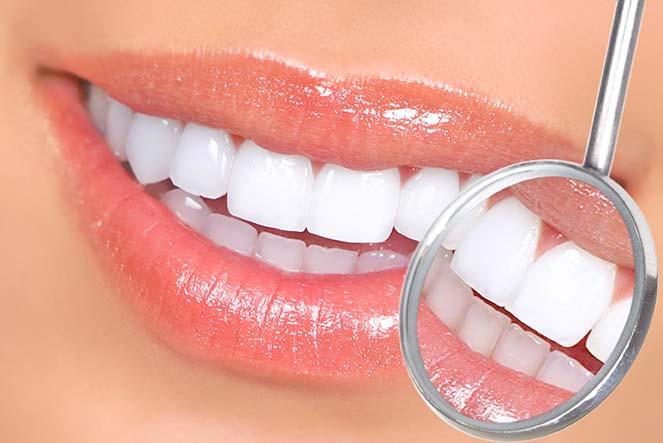 carillas dentales barcelona